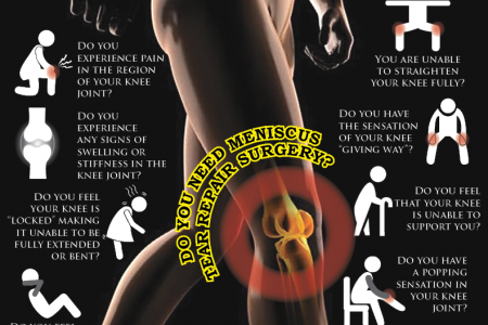 Meniscus Tear Repair Surgery Survey Infographic