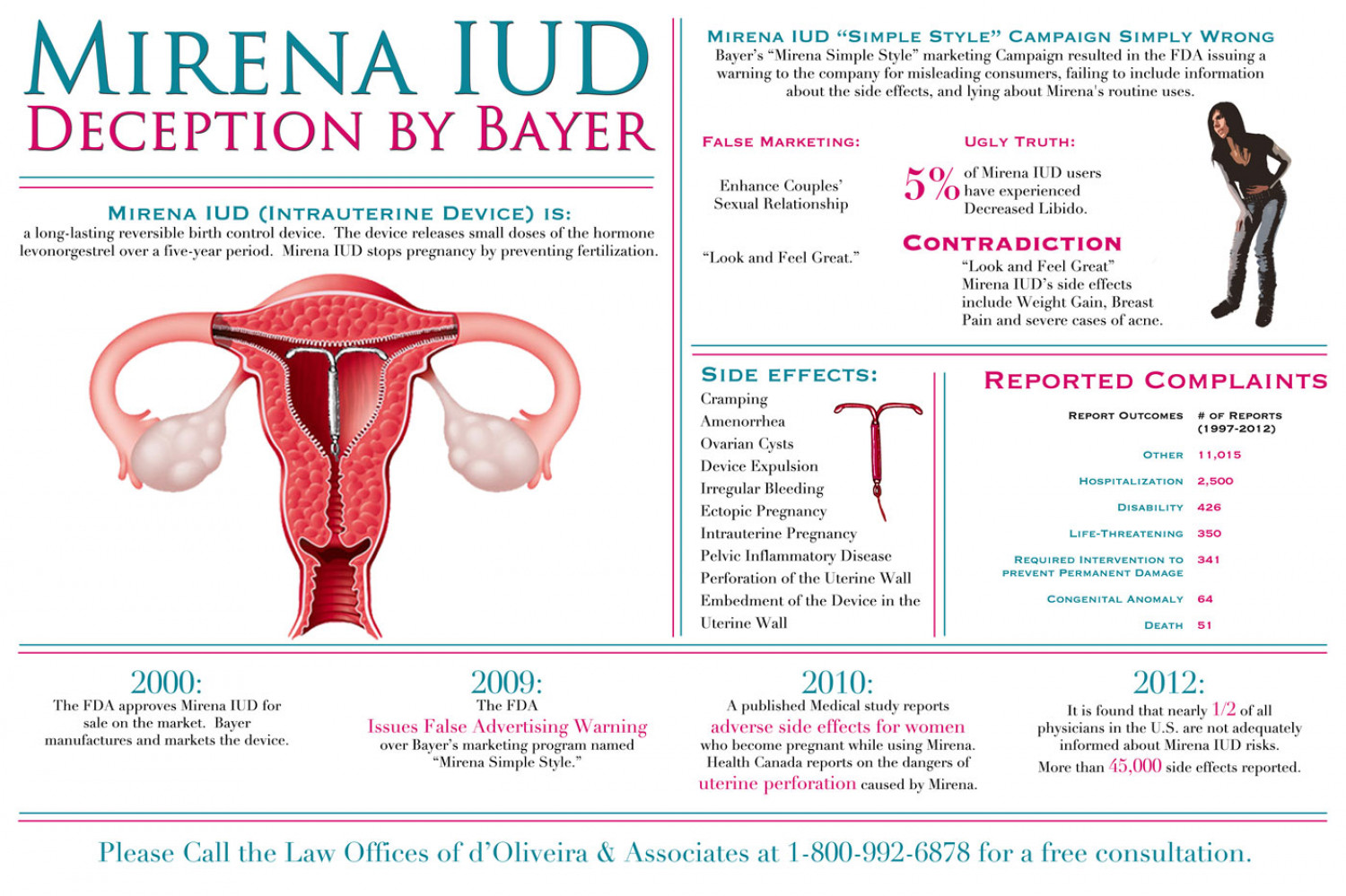 mirena-iud-lawyer-birth-control-device-side-effects-lawsuit-infographic Infographic