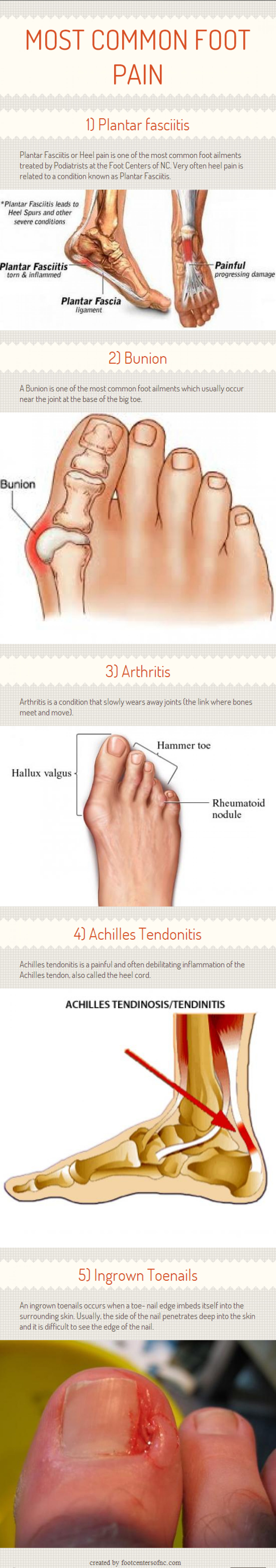 MOST COMMON FOOT PAIN Infographic