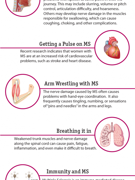 Multiple Sclerosis From Top to Bottom Infographic
