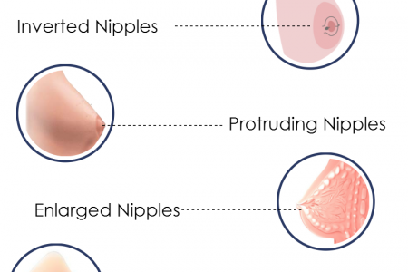 Nipple & Areola Reconstructive Surgery Infographic