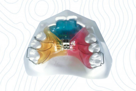 Orthodontic 3Way Expander Appliance | China Orthodontic Infographic
