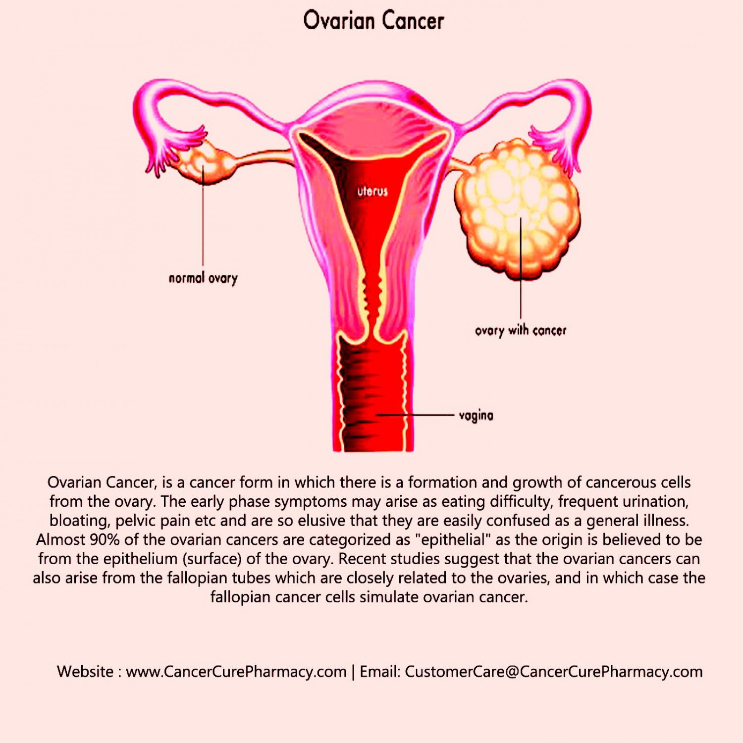 Ovarian Cancer Infographic