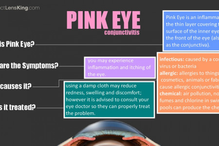 Pink Eye (Conjunctivitis), Causes, Symptoms and Treatments Infographic