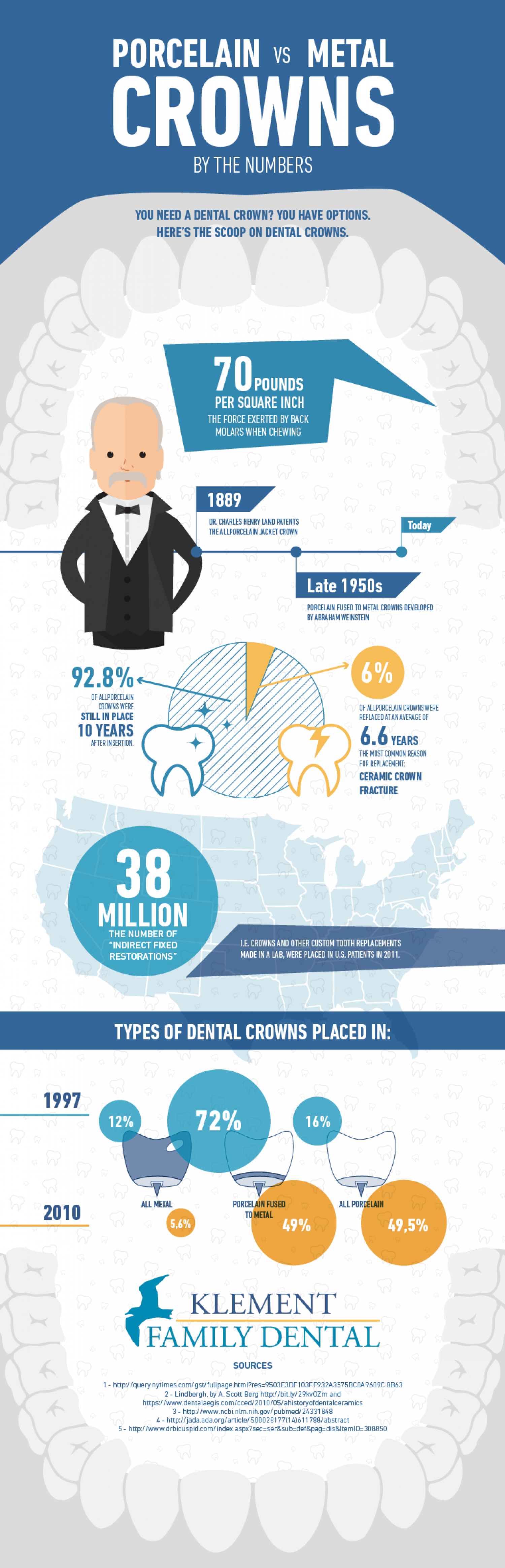Porcelain vs metal crowns Infographic
