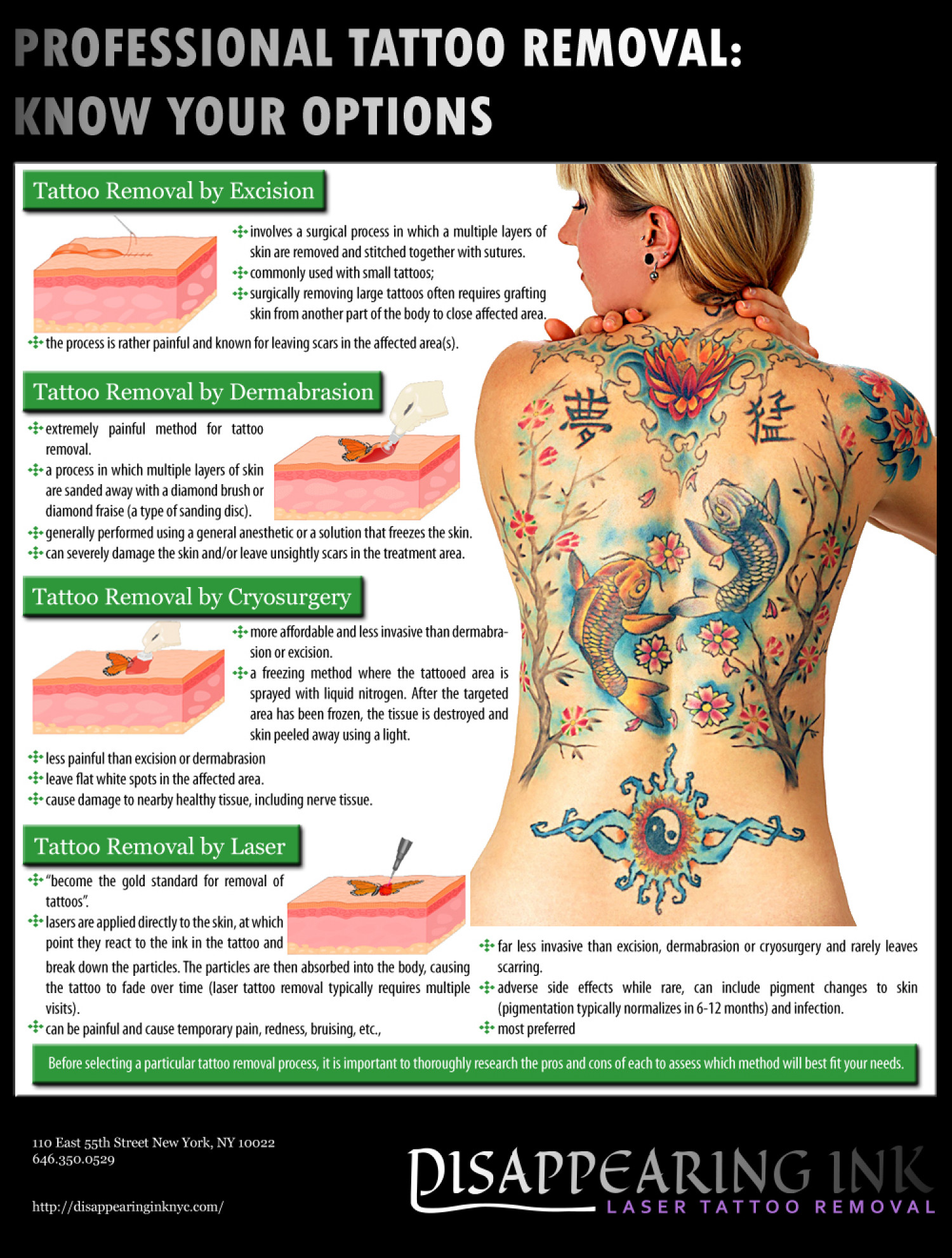Professional Tattoo Removal Infographic