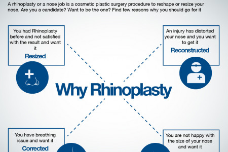 Reasons of Rhinoplasty Infographic