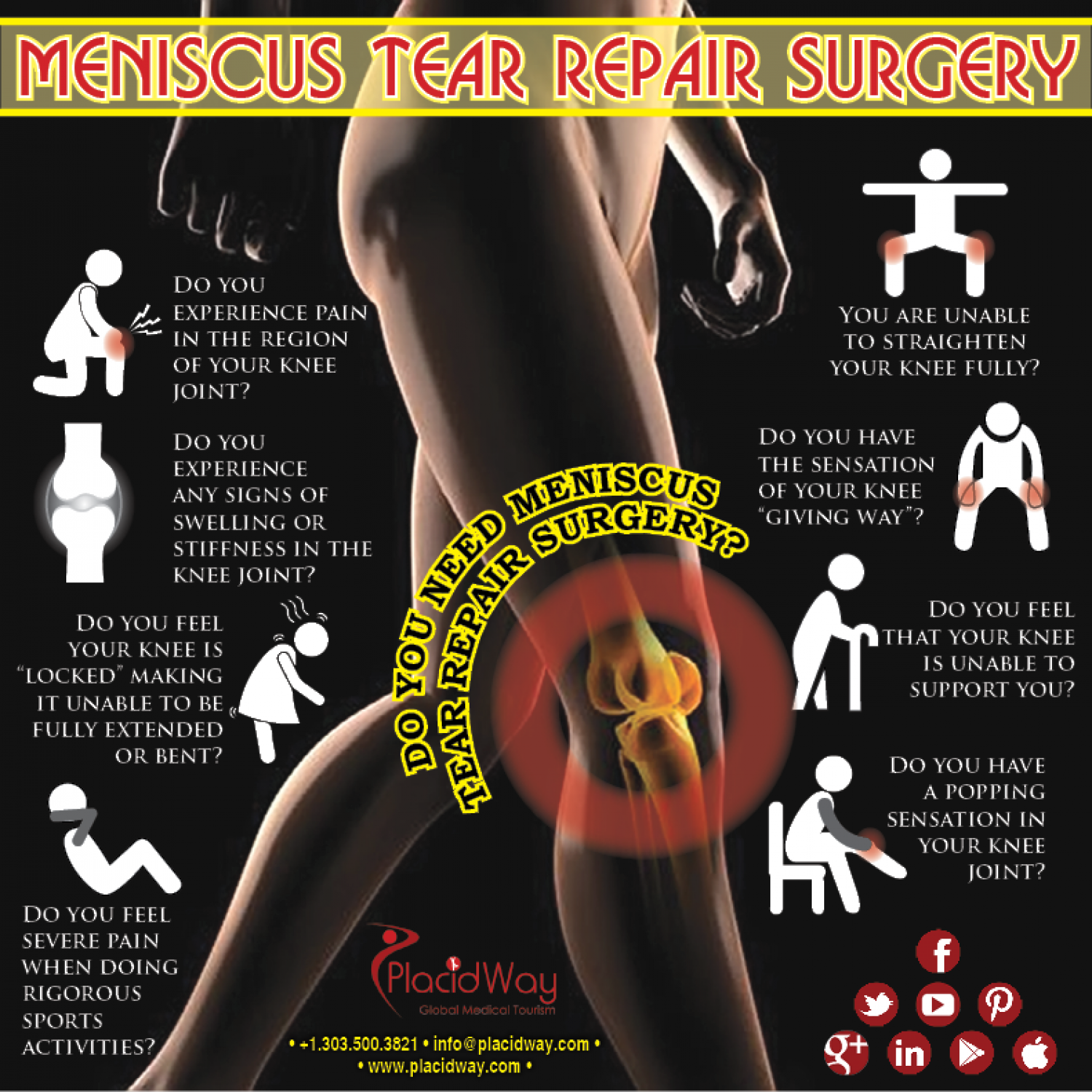 Repair Surgery For Meniscus Tear  Infographic