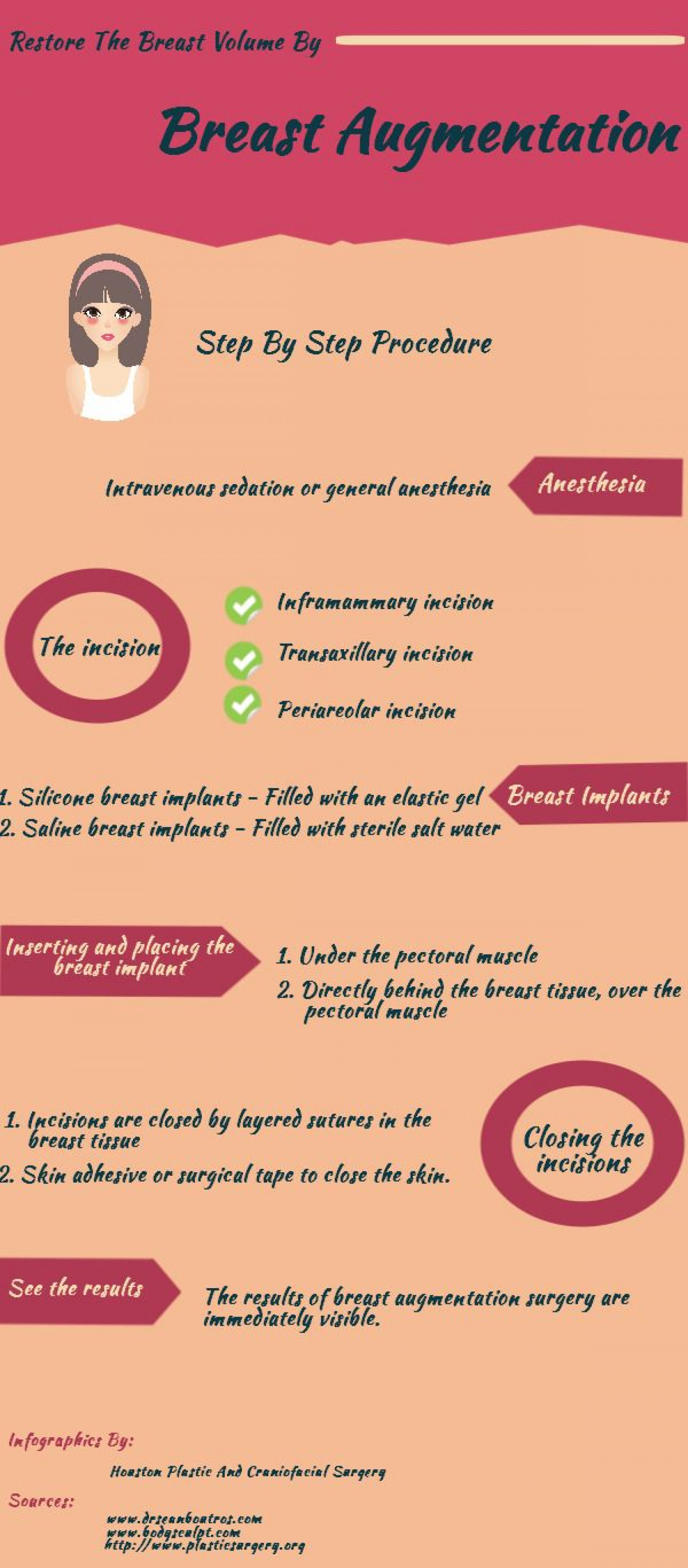 Restore The Breast Volume By Breast Augmentation Infographic