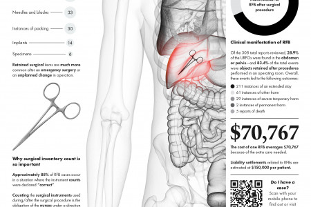 Retained Surgical Foreign Bodies After Surgery Infographic