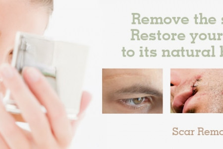 Scar Removal Surgery in Gurgaon,Plastic Surgery | Dezire Clinic Infographic