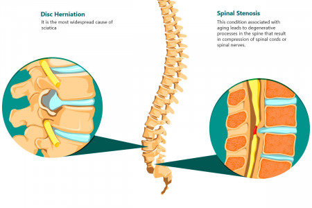 SCIATICA - What is it? Causes and simptoms of sciatica Infographic