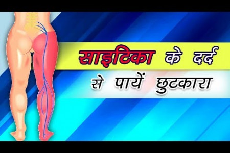 SCIATICA PAIN | Home Remedies | Health Tips by Divyarishi Infographic