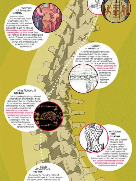 Scoliosis through History Infographic