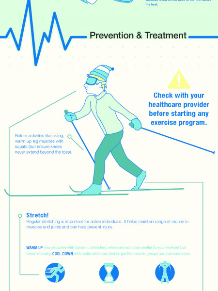 Common Sports & Exercise Injuries Infographic