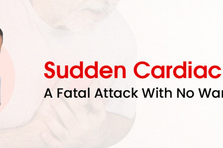 Sudden Cardiac Arrest – A Fatal Attack With No Warnings Infographic