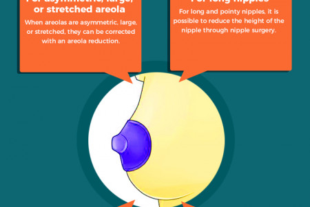 Symmetry Correction Options for Your Nipples Infographic
