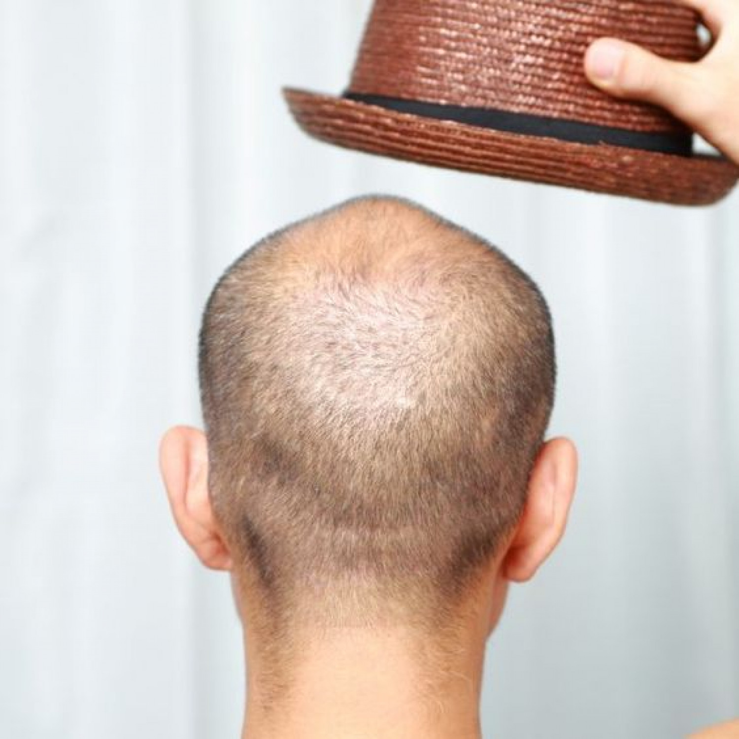 Symptoms of baldness and signs and treatment Infographic