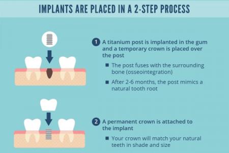 Taking a Bite Out of Tooth Loss with Implants Infographic