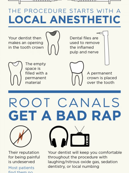 The 411 on Root Canals  Infographic