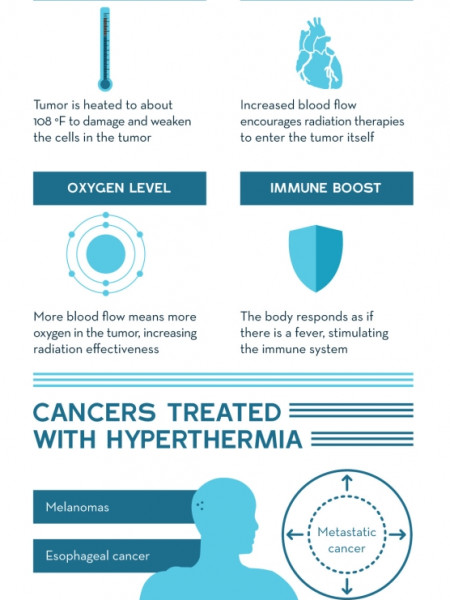 The Basics of Hyperthermia Cancer Treatment  Infographic