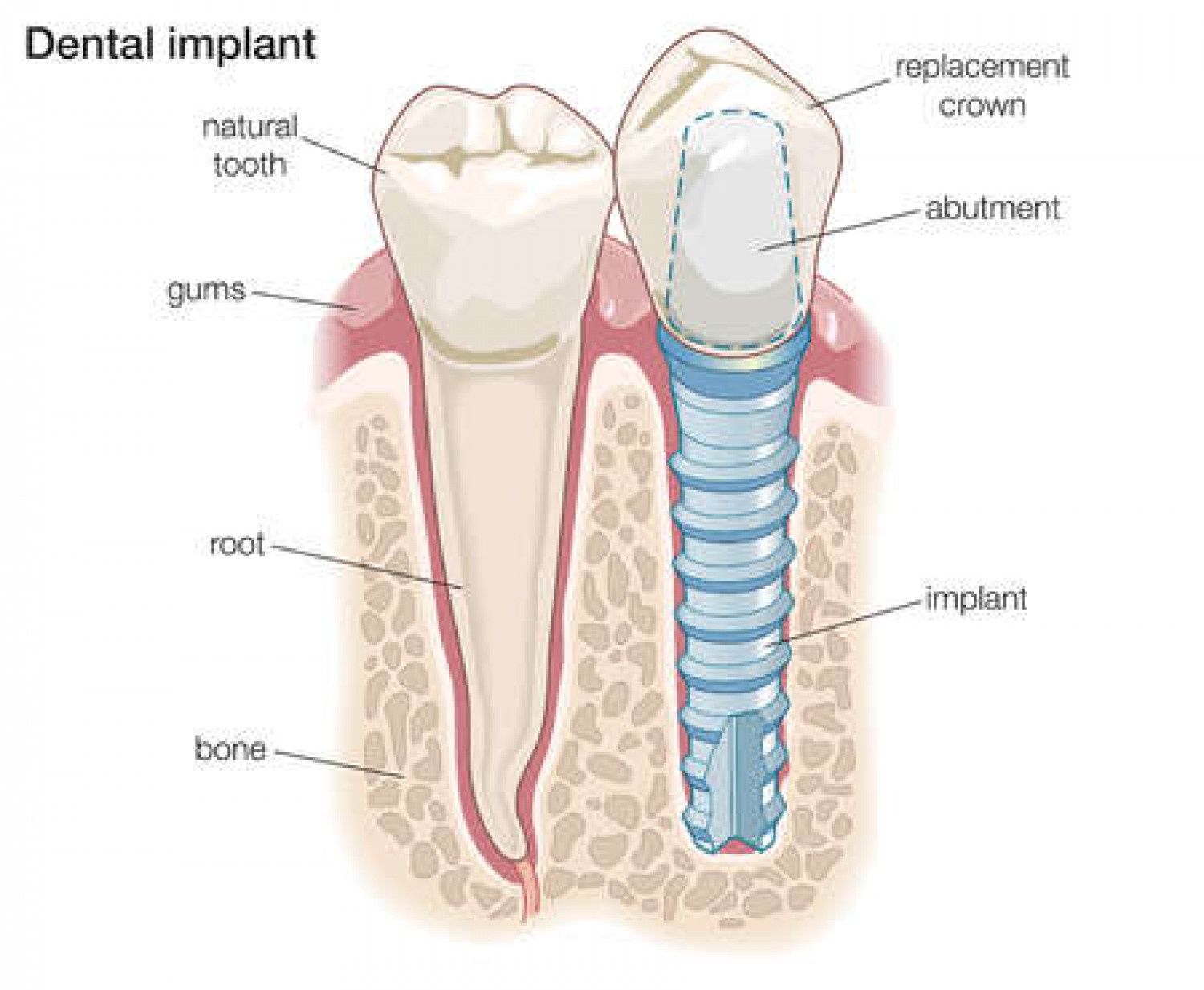 The best dental implants in Toronto | Visual.ly