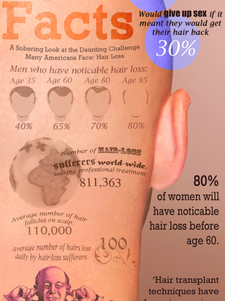 The Bald Facts of Hair Loss Infographic