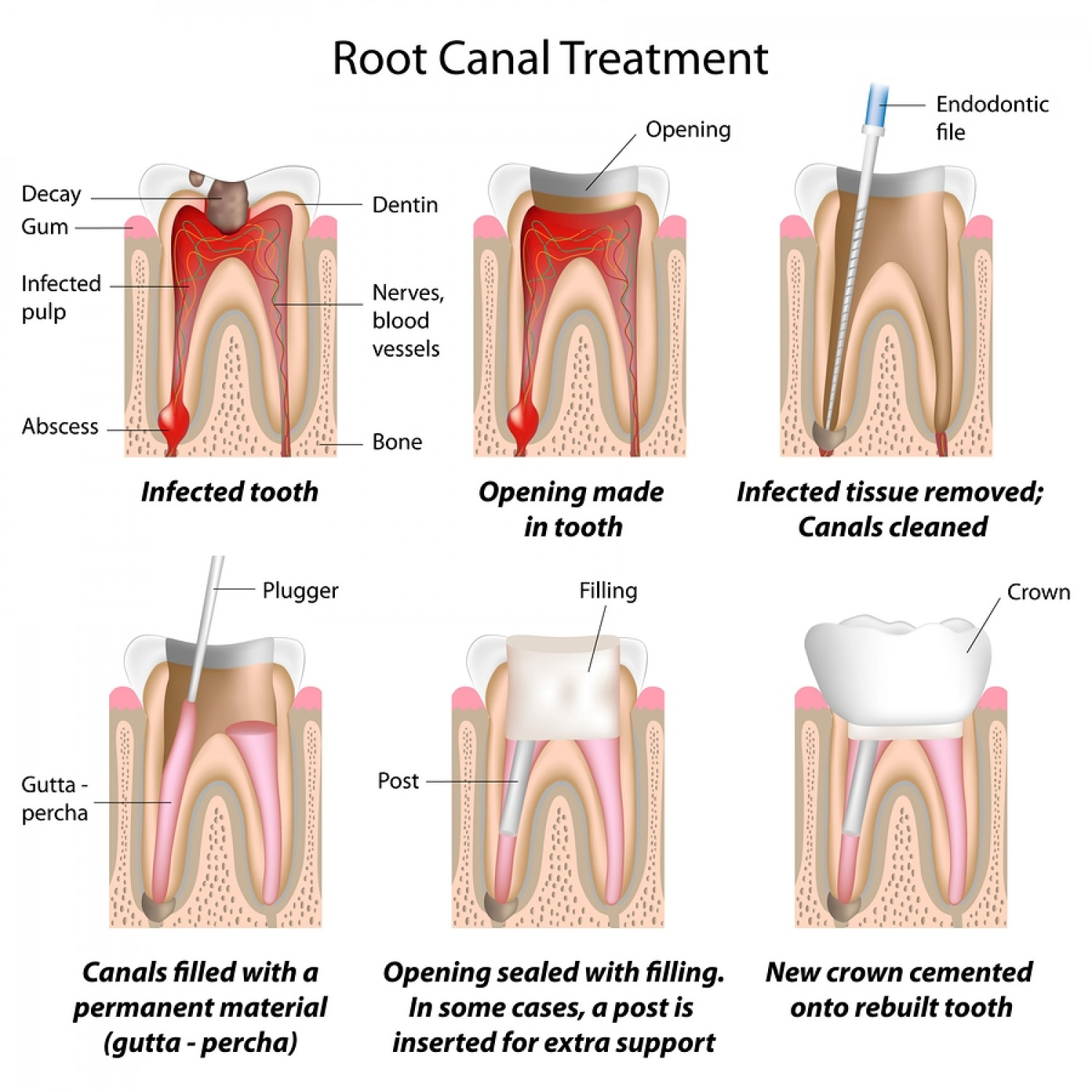 Root Canal Treatment Infographic
