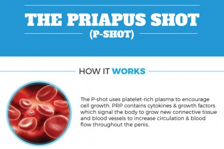 The Priapus Shot (P Shot) Infographic
