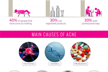 The Ultimate Guide To Acne Infographic