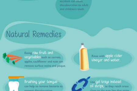 The Ultimate Teeth Whitening Guide Infographic