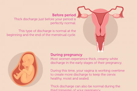THICK WHITE DISCHARGE: 3 TYPES & WHAT THEY MEAN? Infographic