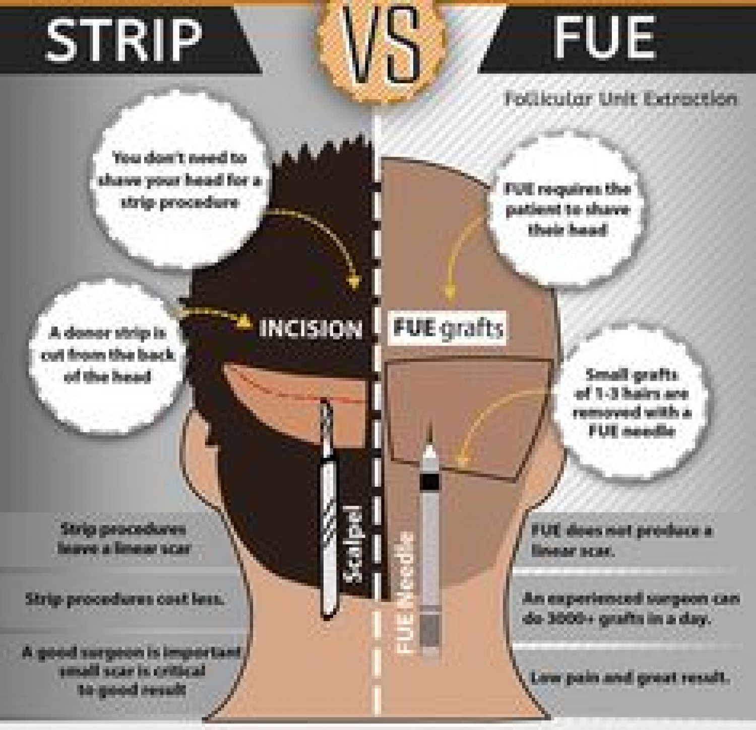Things To Consider After Undergoing Hair Transplant Infographic