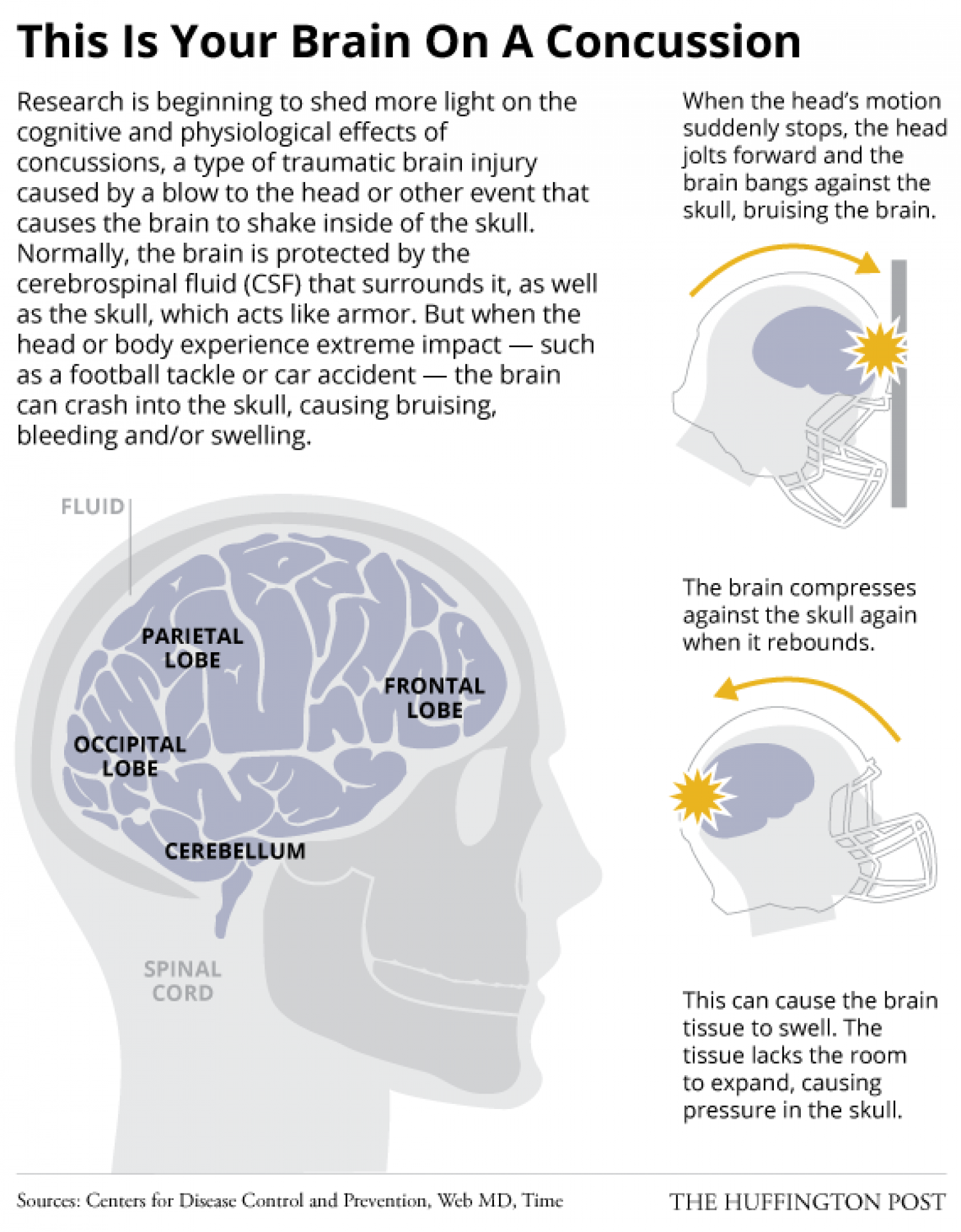 an introduction to a concussion a bruise to the brain Rehabilitation after brain injury at dodd rehabilitation hospital talk to your doctor or health care team if you have any questions about your care  a concussion may cause bruising, bleeding or swelling of the brain a skull fracture may occur along with a concussion.