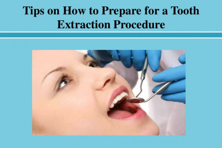 Tips on How to Prepare for a Tooth Extraction Procedure Infographic
