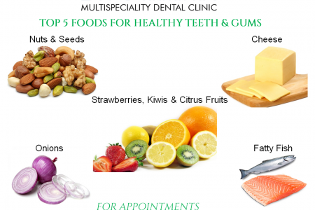 Top 5 Foods For Healthy Teeth Infographic