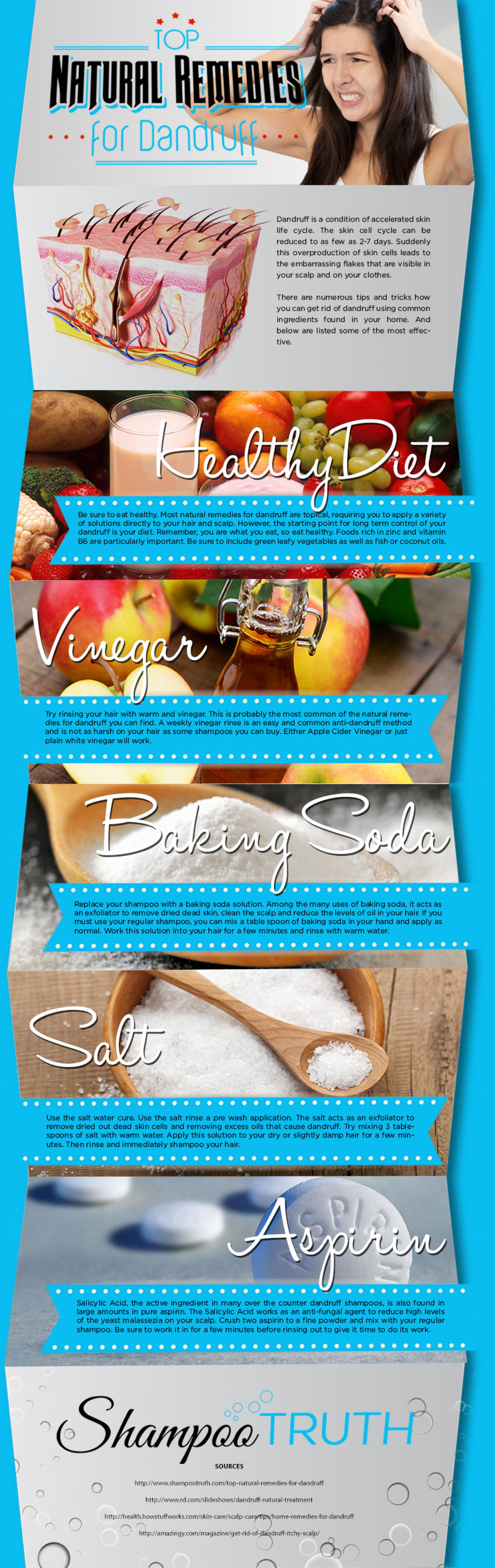 Top Natural Remedies for Dandruff Infographic