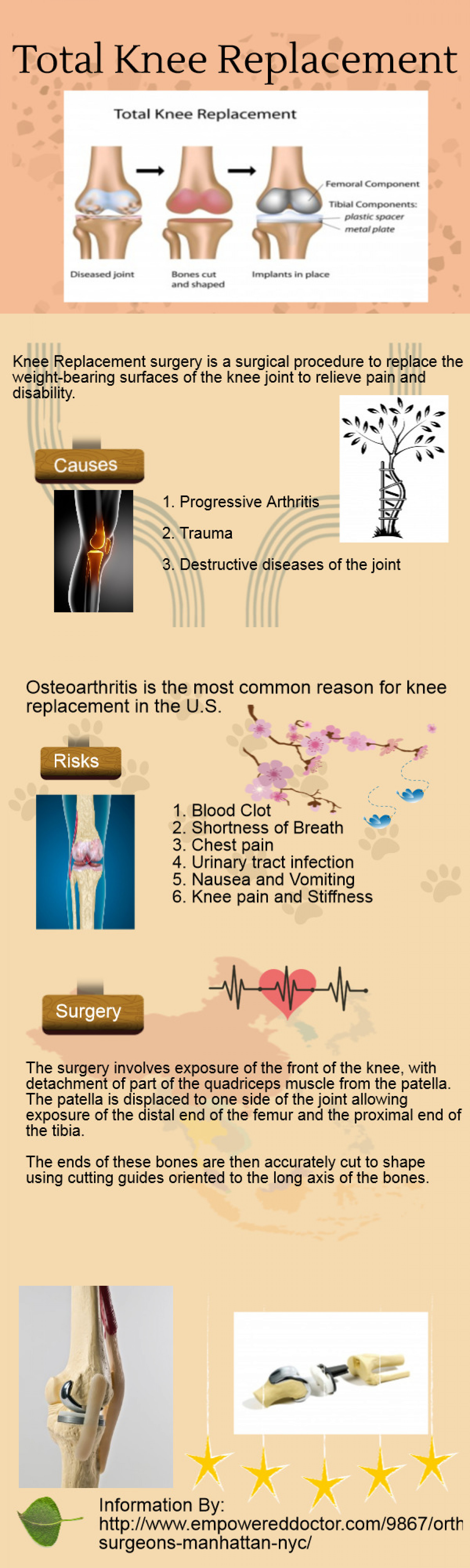 Total Knee Replacement Infographic