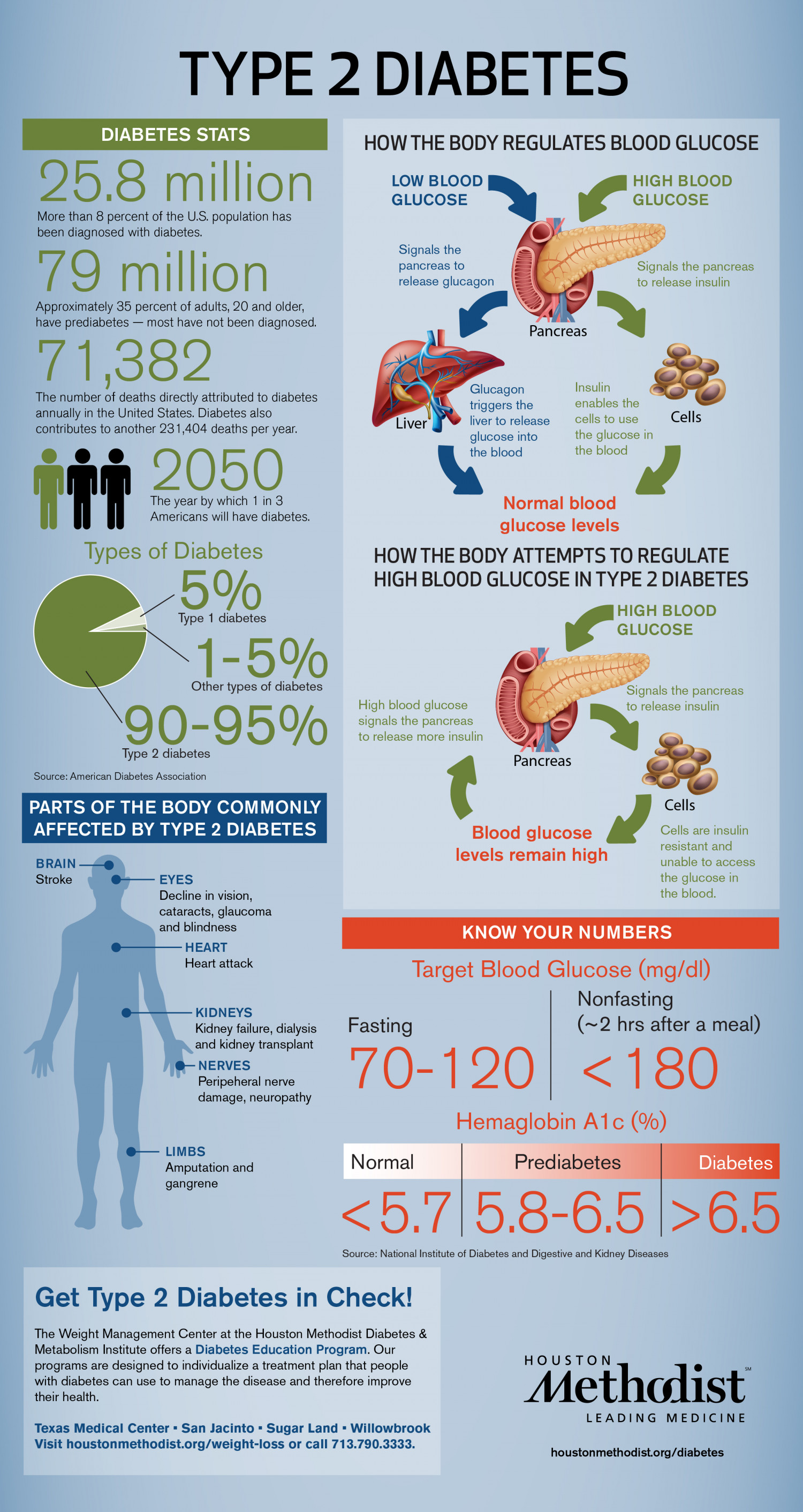 Type 2 Diabetes Infographics Visual Ly