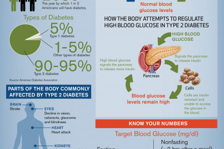 Type 2 Diabetes Infographics Infographic
