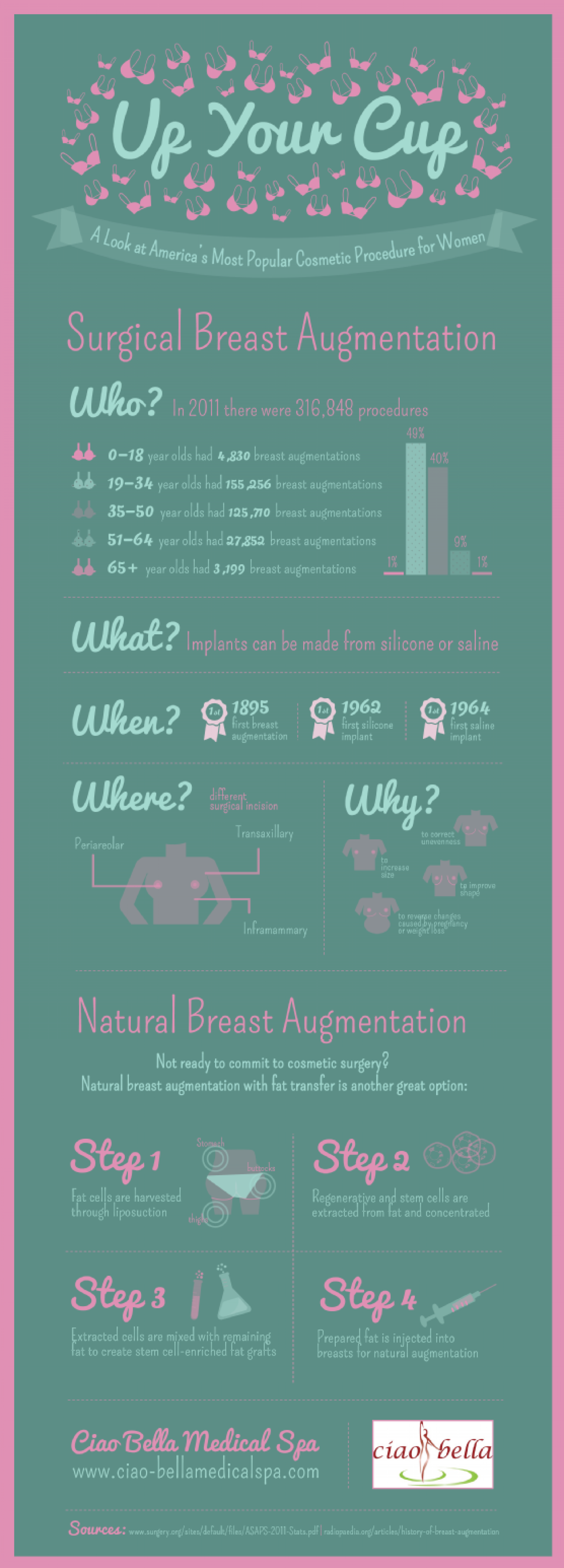 Up Your Cup: A Look at America's Most Popular Cosmetic Procedure for Women Infographic