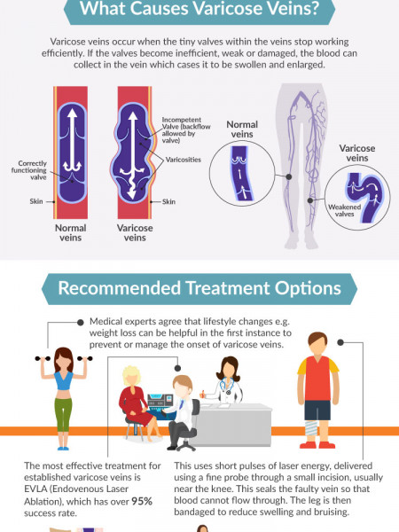Varicose Veins Facts  Infographic