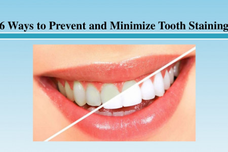 Ways to Prevent and Minimize Tooth Staining Infographic
