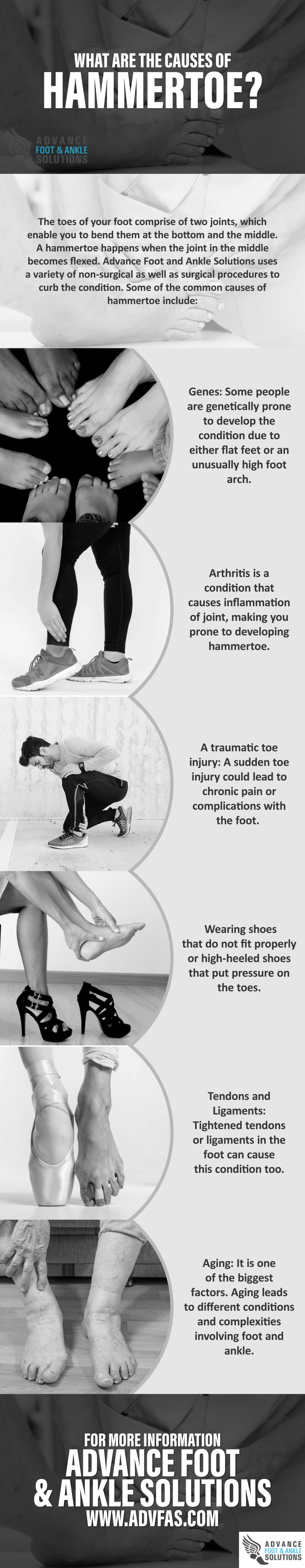 What are the Causes of Hammertoe? Infographic