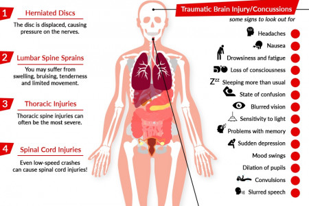 What Happens to Your Body During a Car Accident? Infographic