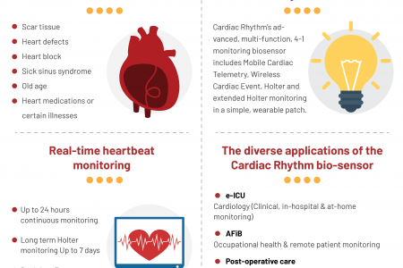 What is Arrhythmia? Infographic
