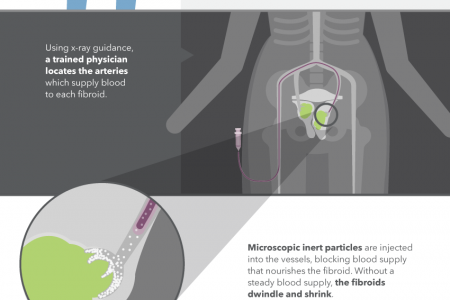 What is Fibroid Embolization Infographic