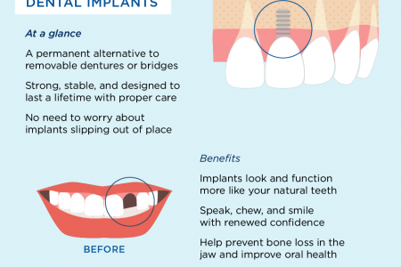 What To Do About Missing Teeth Infographic