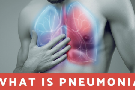 What you need to know about pneumonia? Infographic